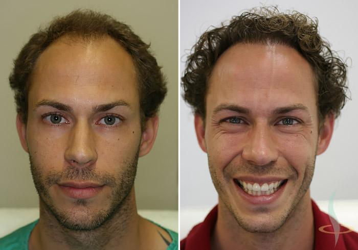 A gauche: avant / à droite: après 2de opération