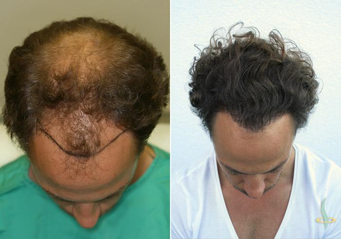 A gauche: avant / à droite: après 3de opération