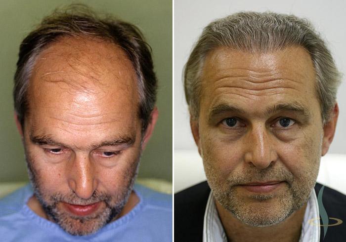 A gauche: avant / à droite: 8 mois après 3e opération (2800 greffons au total)