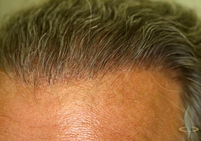 Racines des cheveux