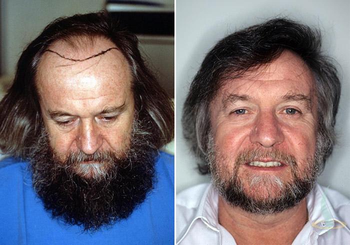 A gauche: avant / à droite: 1,5 ans après 2e opération