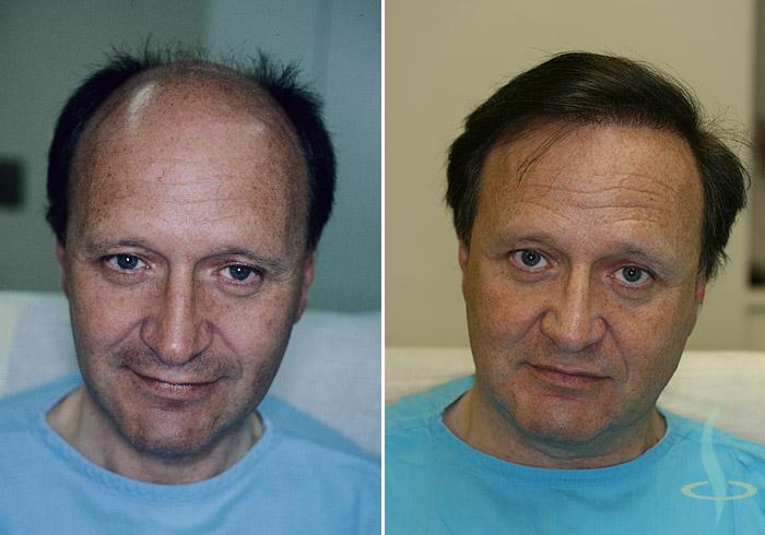 A gauche: avant / à droite: après 3e opération