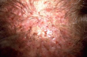 Irritations et cicatrices provenant d'une greffe de cheveux artificiels, visibles sur un cuir chevelu masculin, en gros plan