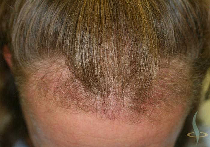 Racines des cheveux après 1er opération