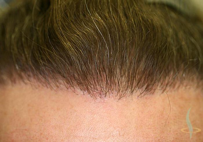Racines des cheveux après 2e opération